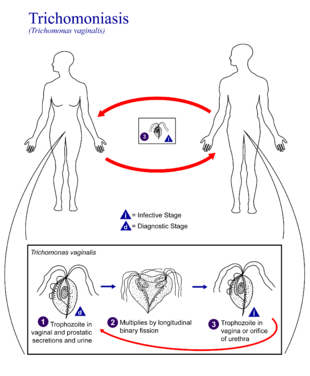 Nemi betegség törölközőtől: trichomoniasis