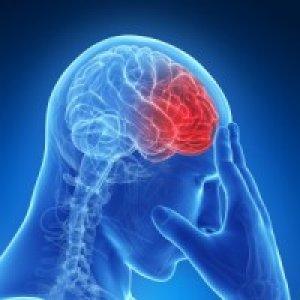 merevedés agyi bénulással