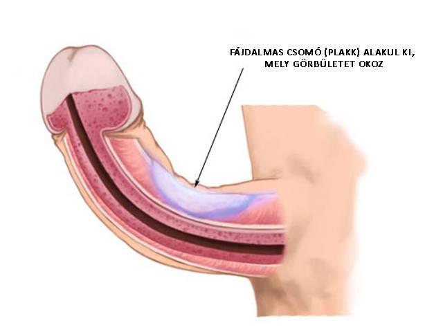pénisz peyronie-kór