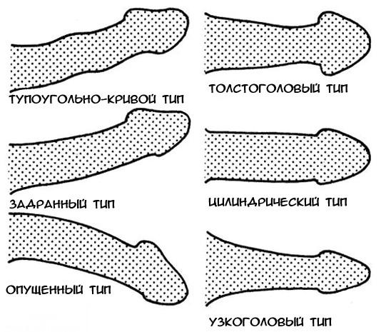 hogyan lehet meghatározni a pénisz görbületét)