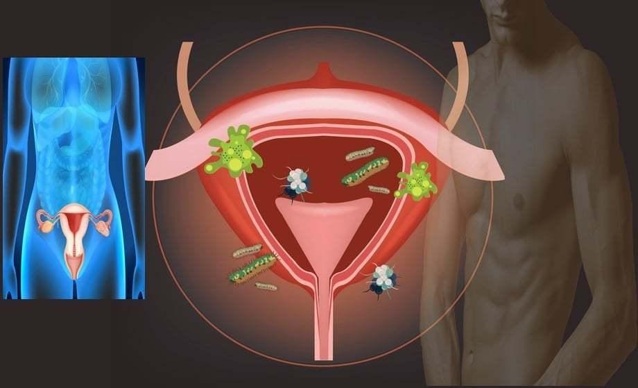 erekció és ureaplasmosis