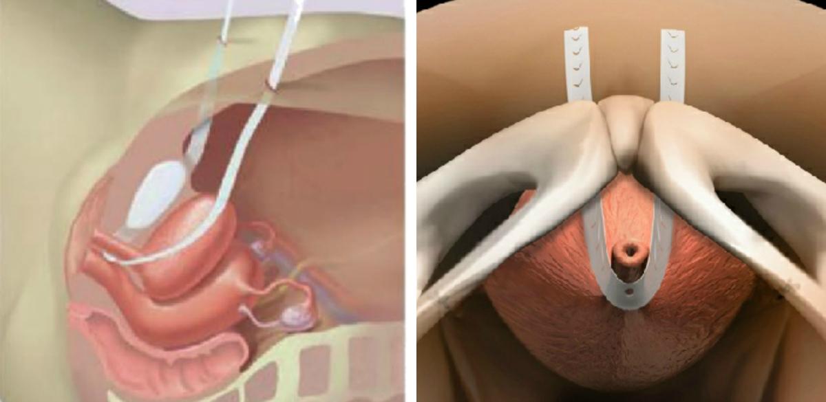 műtét a pénisz meghosszabbítására