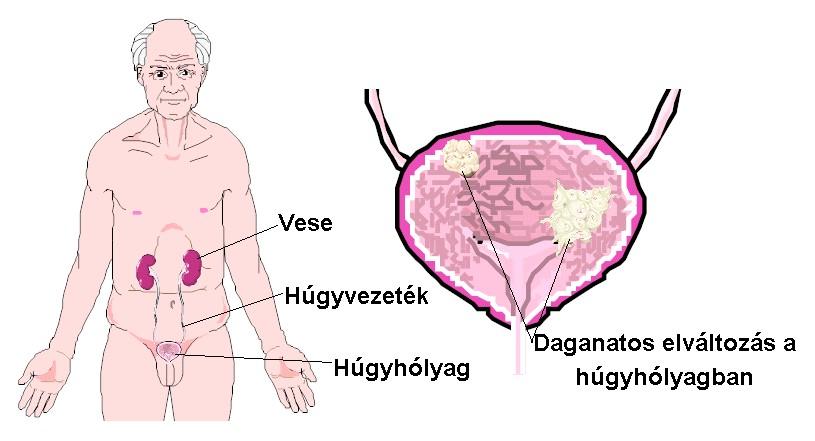 Prosztatagyulladás elmeszesedése, merevedési zavarok alternatv kezelése – thermogaz.hu