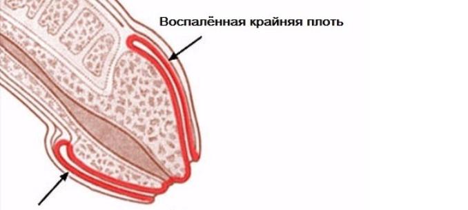 sebek oka a péniszen