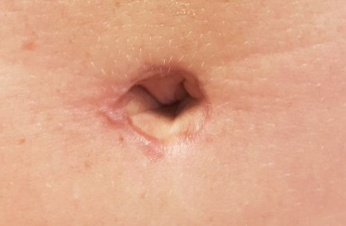 megvastagodó pénisz