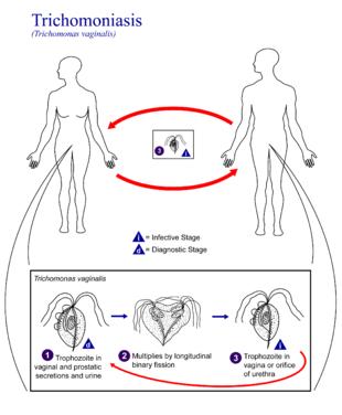 trichomoniasis pénisz)