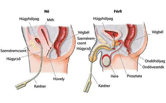 a péniszben lévő szonda után