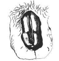 pénisznagyobbítás az uro pro-ban nincs merevedés az első felvonáson