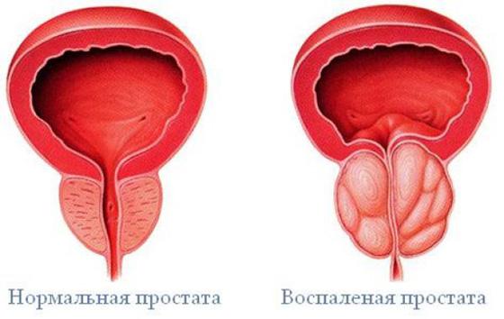 krónikus prosztatagyulladás amely súlyosbítja az erekciót