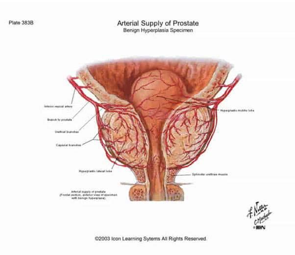 krónikus prosztatagyulladás-erekció kezelése után