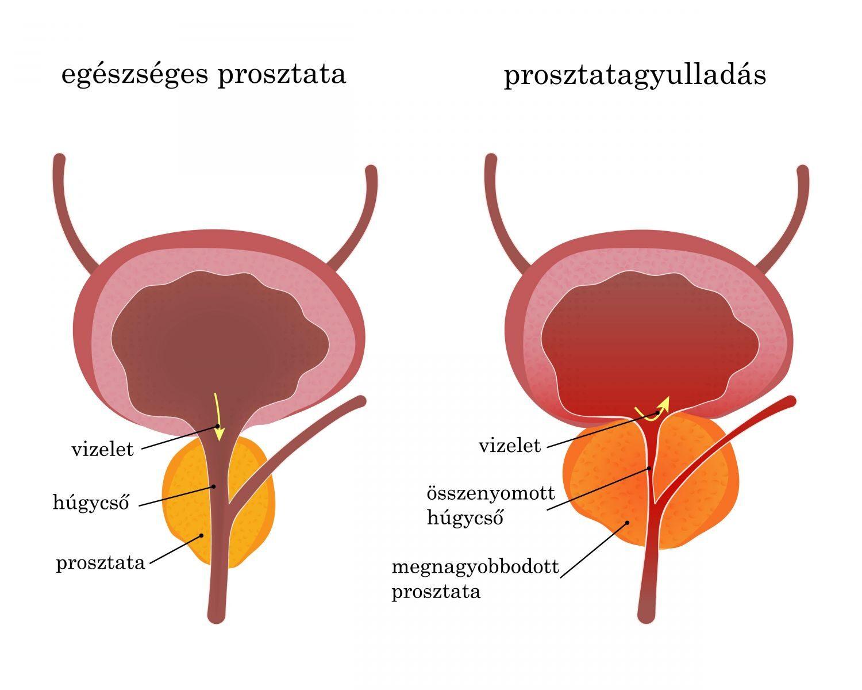 Gyógyszerek prosztatagyulladás és merevedési rendellenességek kezelésére