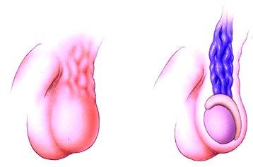 erekció varicocele után)