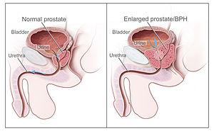 és a prosztatagyulladás esetén az erekció gyengülhet