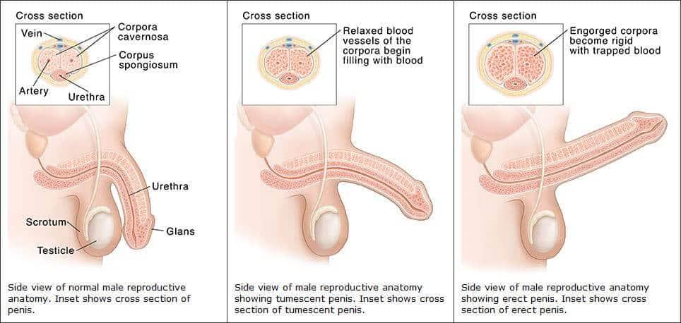 fertőzött pénisz ha nincs merevedés, mit kell tennie