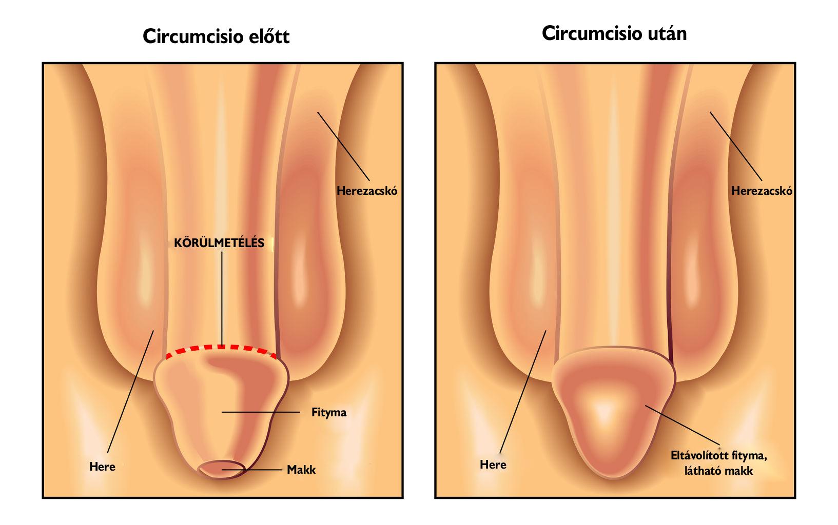 férfi pénisz fejlődése