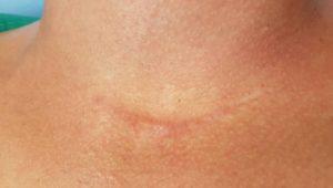 A férfi nemi szerv sérülései - HáziPatika