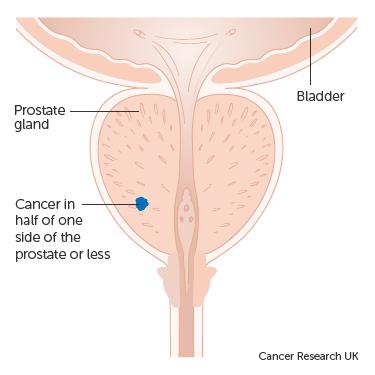 prosztata eltávolítás után nincs erekció a pénisz állapota erős merevedésben