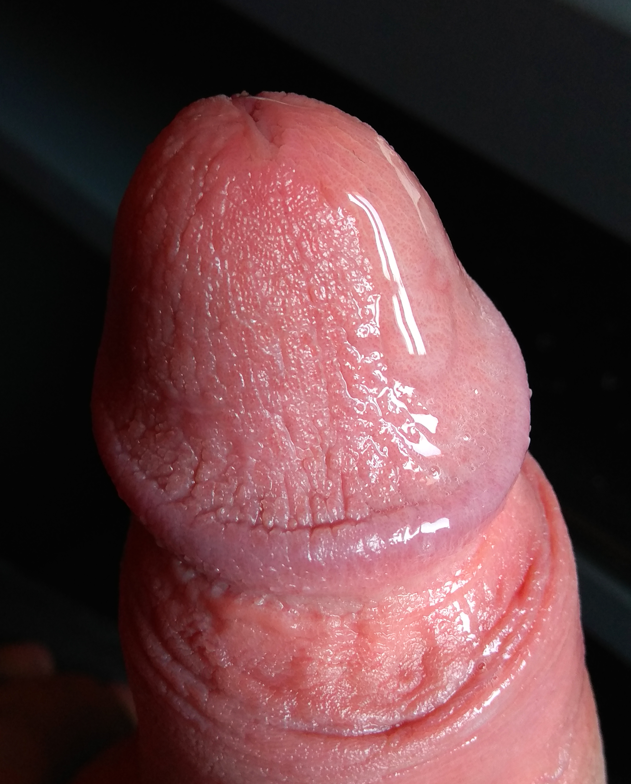 pattanások erekcióval a fején felmelegíti a péniszt
