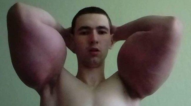 pénisz és szteroidok