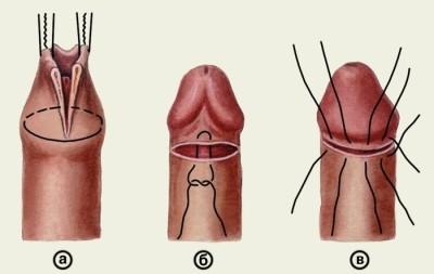 fizikai erekció javítására mi ugrálhat a péniszen