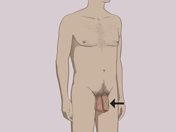 ha kis péniszű társ